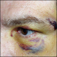 A man sporting a black eye after being hit by a cricket ball.