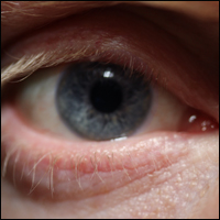 A blue eye.
