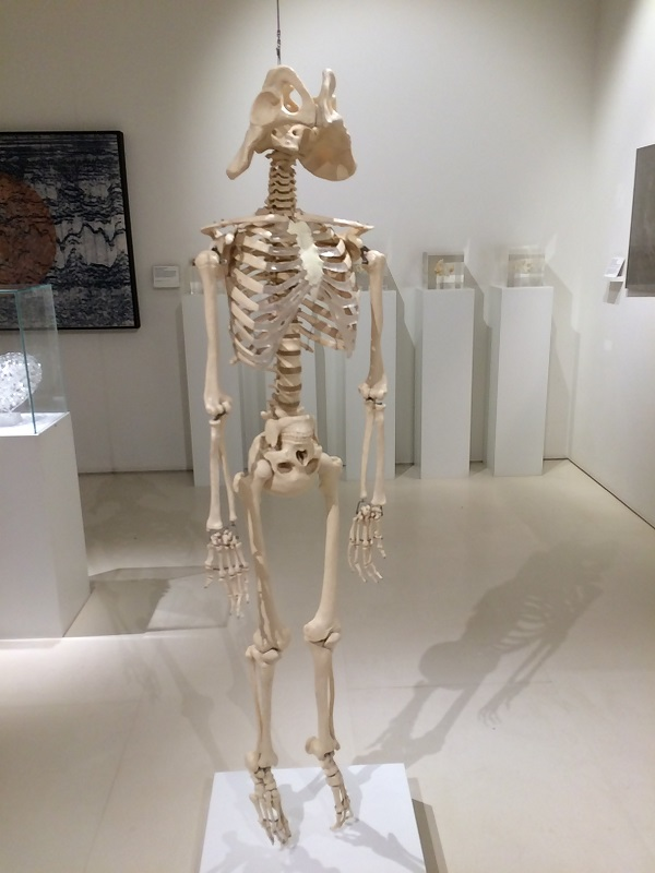 A skeleton with an anatomical abnormality. The head and pelvic girdle are reversed.
