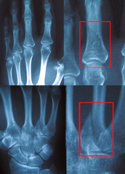 x-rays of a hands with a broken fingers with the fractures clearly visible.
